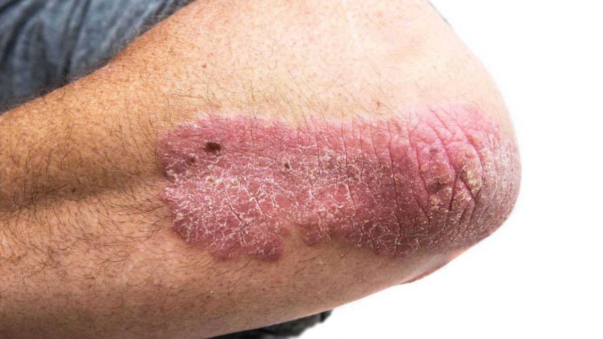 Primeros síntomas de la psoriasis